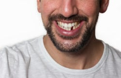 Replacing missing teeth woodbridge va