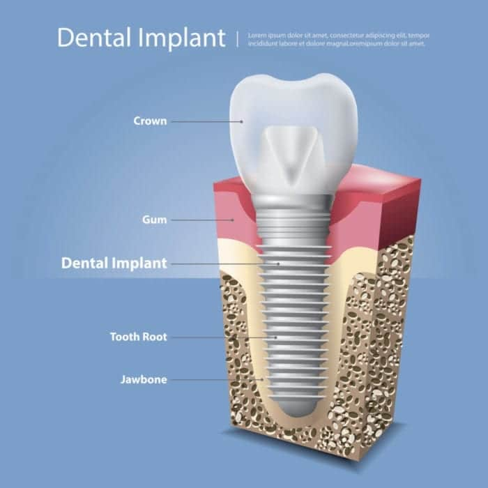 What is a single tooth dental implant woodbridge va