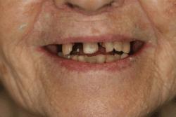 dental implant dentist patient before