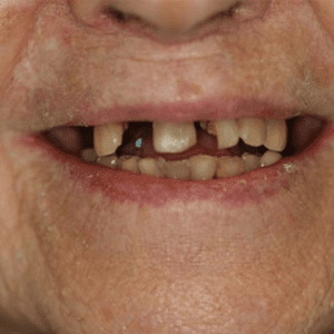 dental implant dentist patient before