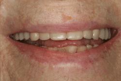 dental implant dentist patient after