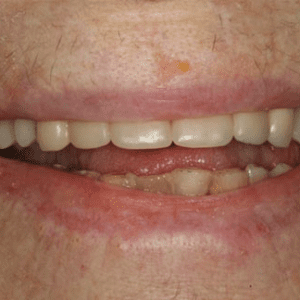 dental implant dentist patient after