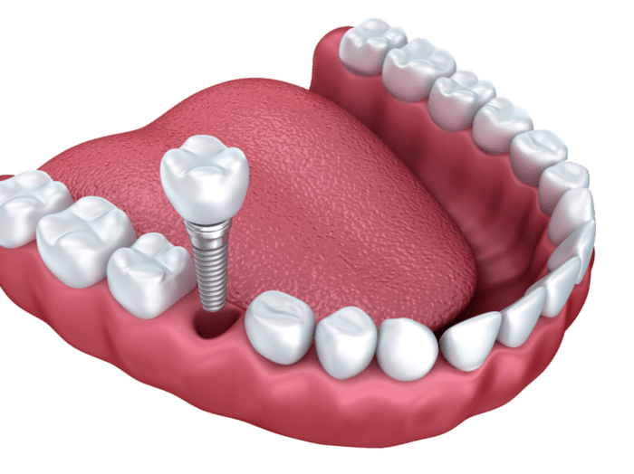 Are You Interested in Dental Implants Woodbridge VA
