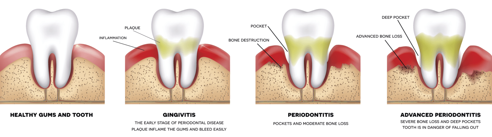 stages of periodontal disease woodbridge va
