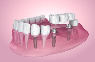 dental implants woodbridge va